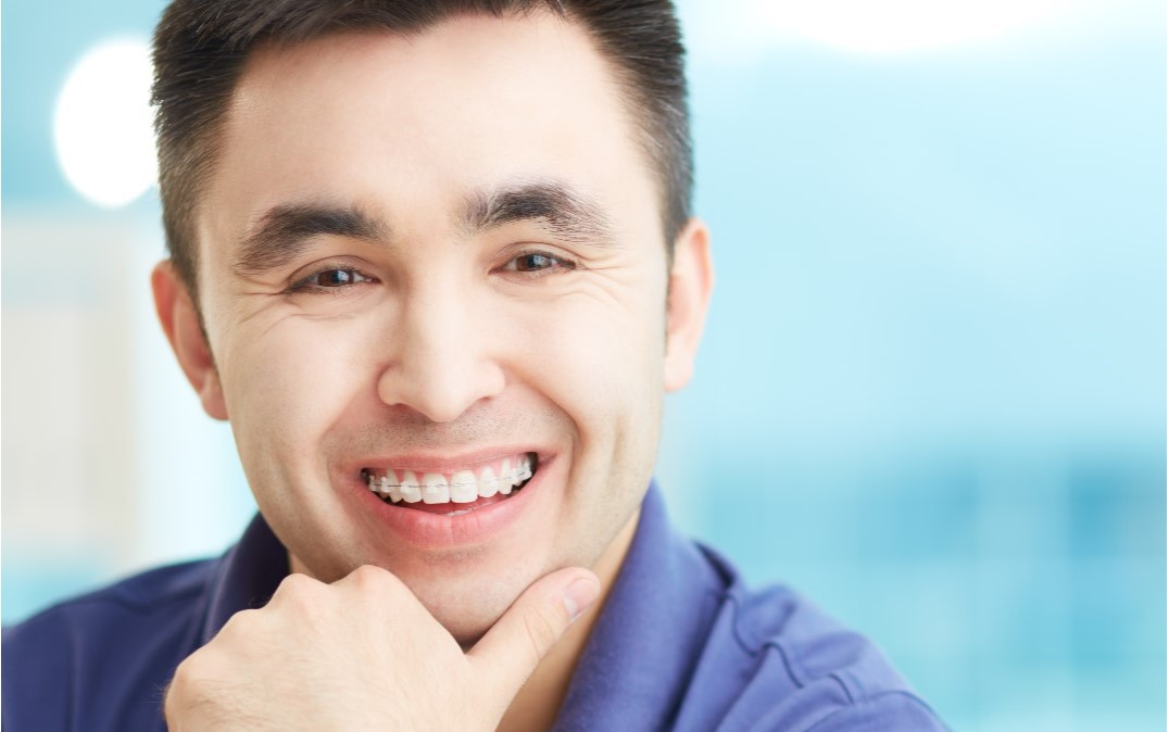 man with clear braces image