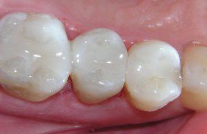dental composite filling image