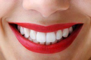 beautiful white smile image