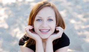 teen with braces image