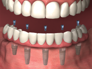 all on 5 dental implants image