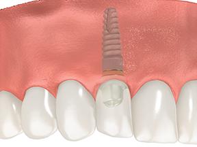 dental implant illustration image